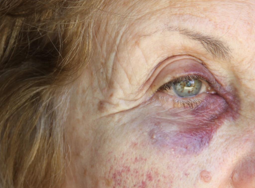 Violento asalto a una jubilada en Tres Arroyos